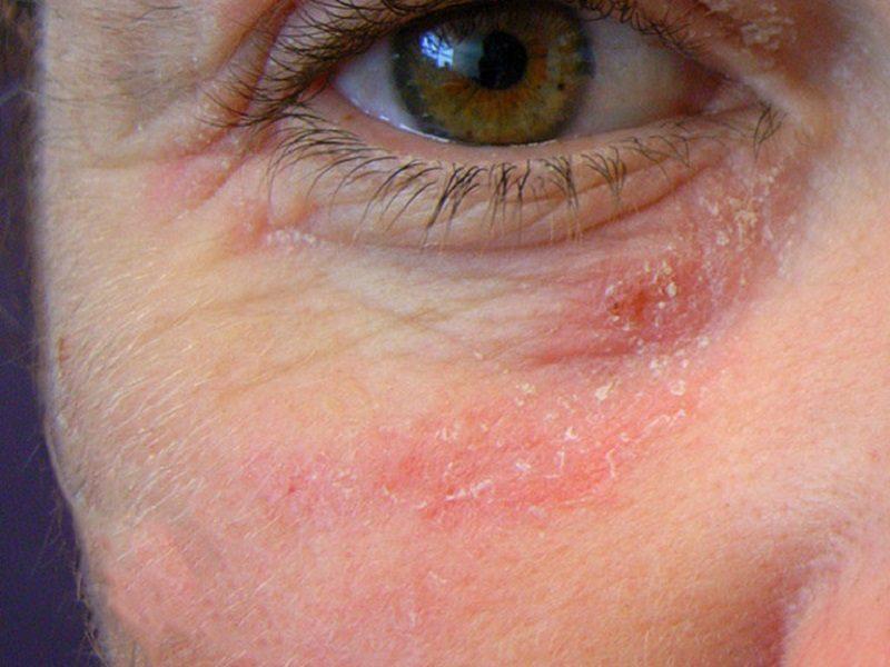 Dấu hiệu nhận biết viêm da tiếp xúc ở mặt