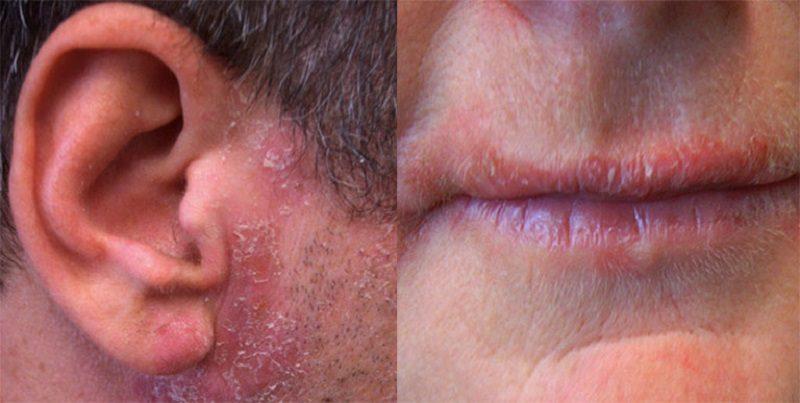 Các biểu hiện ngoài da gây bong tróc, ngứa rát
