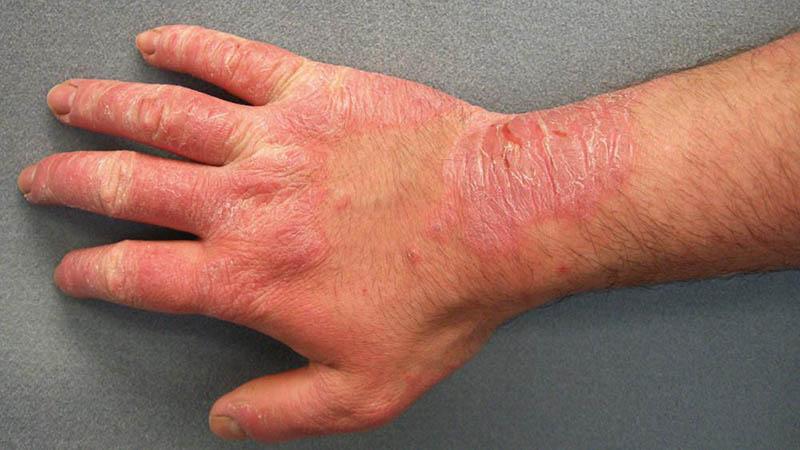 Viêm da tiếp xúc ở tay thường gặp ở những người trong độ tuổi lao động, thường xuyên tiếp xúc với hóa chất