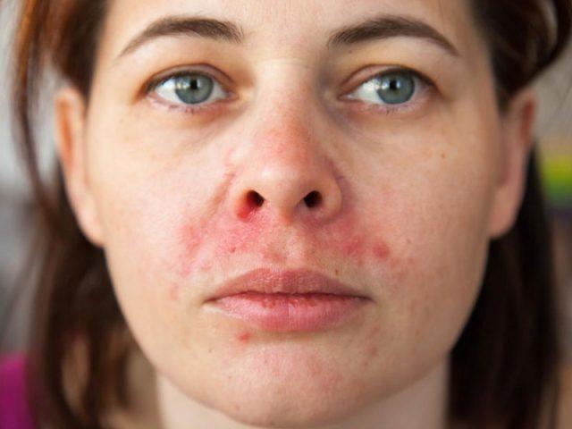 Viêm da tiết bã có tự hết không? Có thể chữa trị dứt điểm hay không?