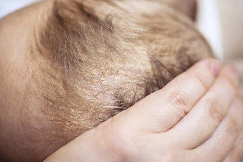 Viêm da tiết bã đến nay vẫn chưa có phương pháp điều trị dứt điểm