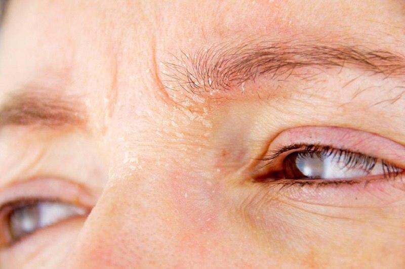 Viêm da dầu ở mặt với đặc điểm tiến triển phức tạp