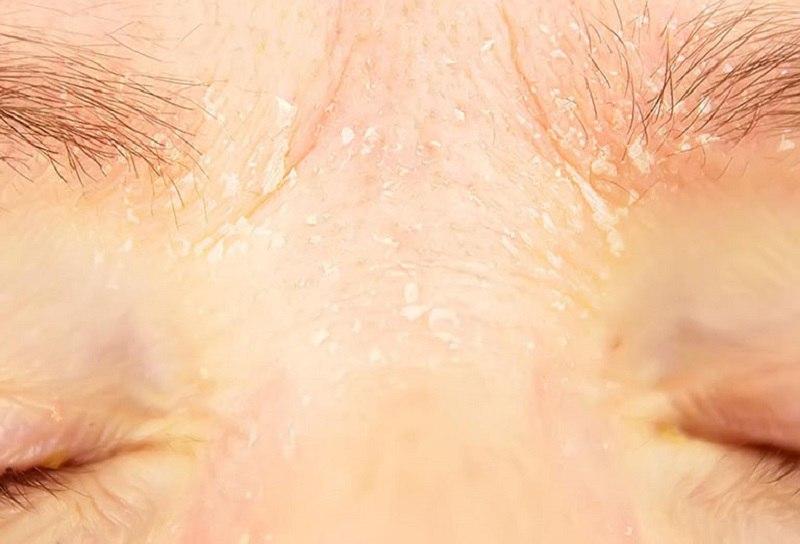 Viêm da tiết bã ở mặt gây ra những tổn thương nghiêm trọng trên da