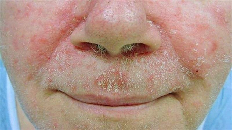 Viêm da tiết bã ở mặt có thể khởi phát do nhiều nguyên nhân khác nhau.