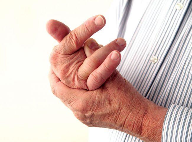 Bệnh có thể gây ra biến chứng biến dạng khớp