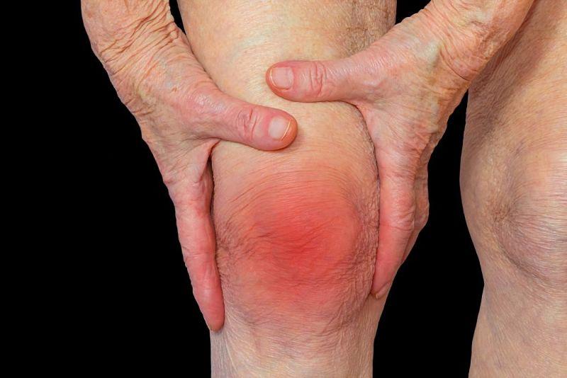 Viêm khớp cấp là tình trạng sưng đau xảy ra trong một thời gian ngắn