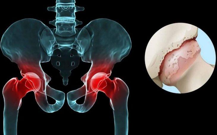 Viêm khớp háng: Nguyên nhân gây bệnh và cách điều trị