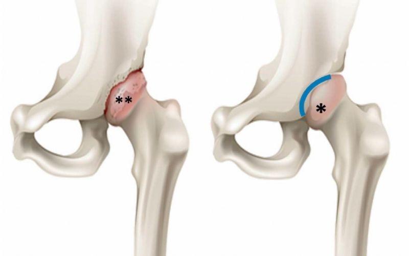 Hoại tử chỏm xương đùi gây nên viêm khớp háng