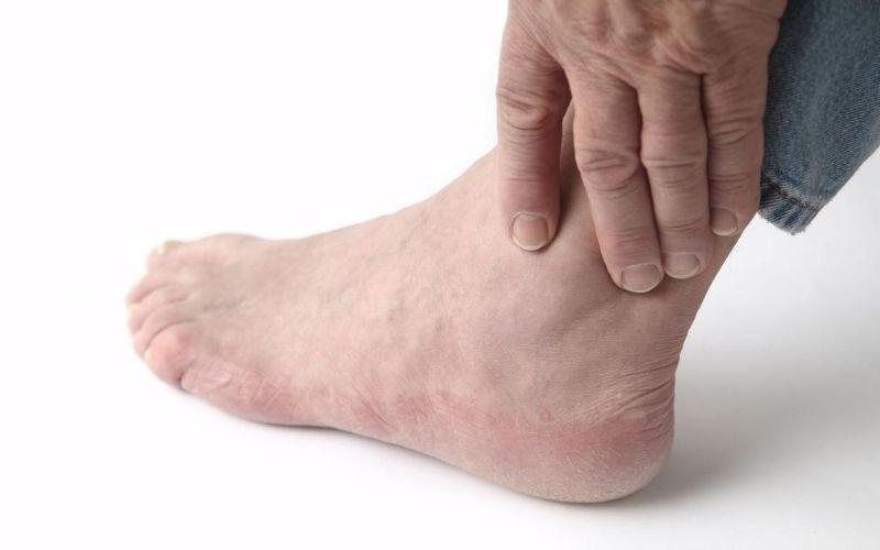 Viêm khớp mắt cá chân gây đau nhức, cản trở vận động