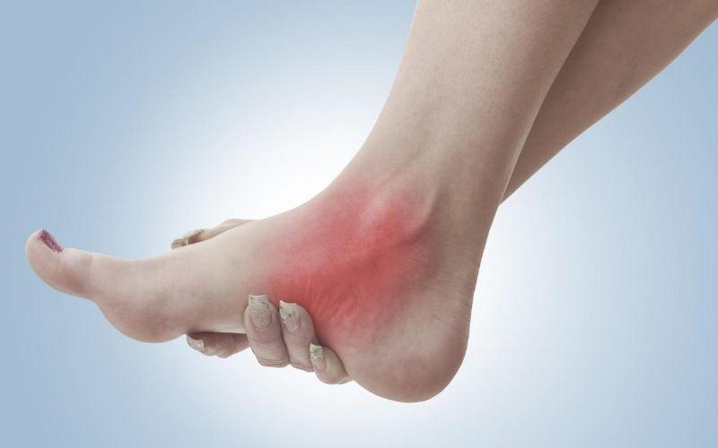 Những bệnh nhân có tiền sử bệnh lý xương khớp dễ mắc viêm khớp mắt cá chân hơn