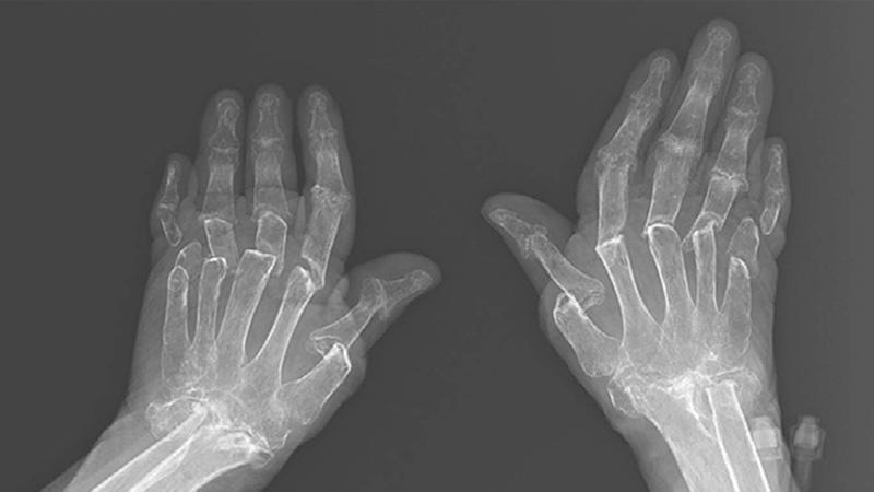 Áp dụng các phương pháp chẩn đoán hình ảnh để nhận định mức độ bệnh