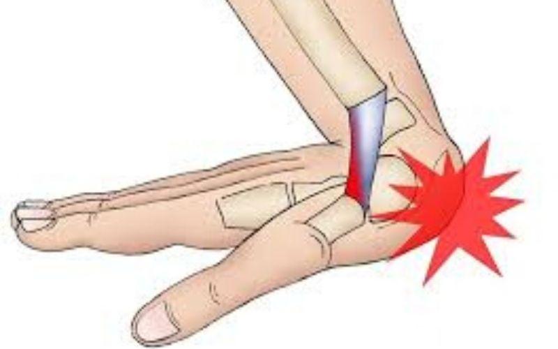 Chấn thương dễ khiến viêm khớp tay khởi phát