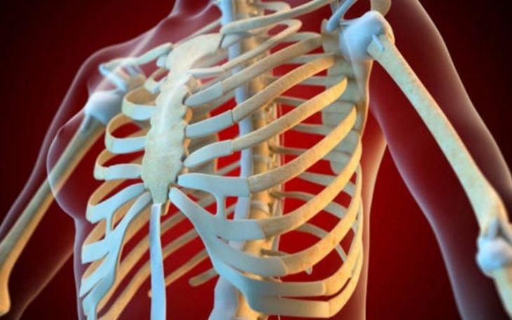 Viêm khớp ức sườn: Bệnh nhẹ nhưng không nên chủ quan!