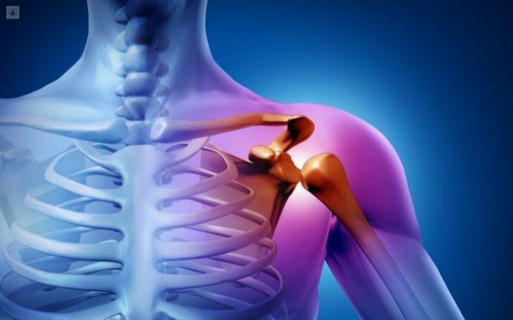 Viêm khớp vai: Nguyên nhân, triệu chứng và cách điều trị