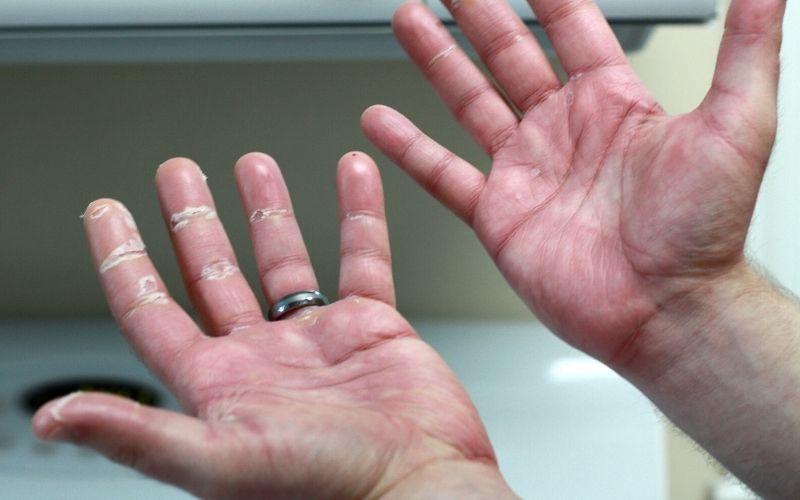 Viêm khớp xảy ra ở những bệnh nhân mắc vảy nến được gọi là viêm khớp vảy nến