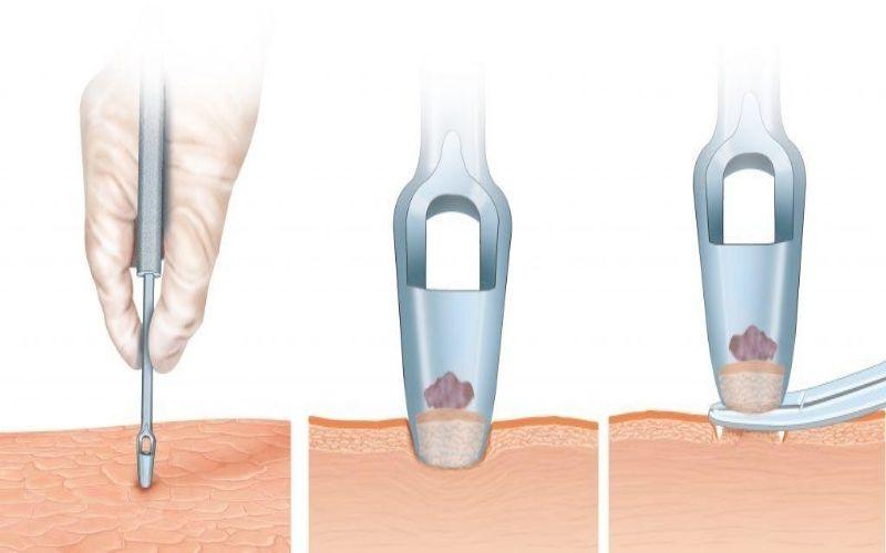 Phương pháp sinh thiết da được áp dụng trong chẩn đoán và điều trị viêm khớp vảy nến