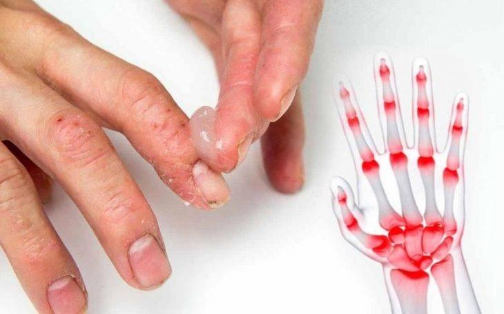 Bệnh viêm khớp vảy nến: Phát hiện nhanh, điều trị sớm