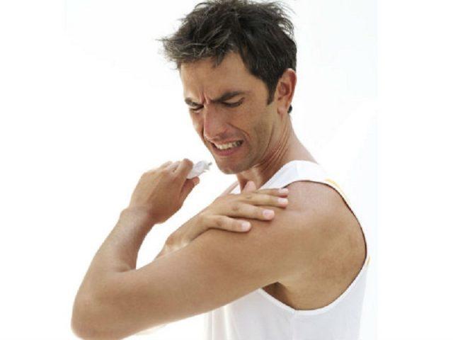 Viêm quanh khớp vai thể đông cứng gây đau nhức nghiêm trọng