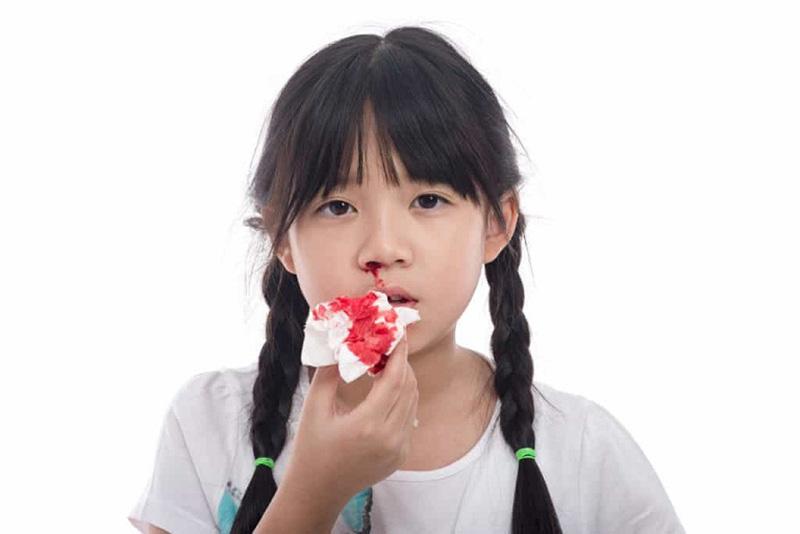 Viêm xoang chảy máu mũi có thể cảnh báo biến chứng bệnh