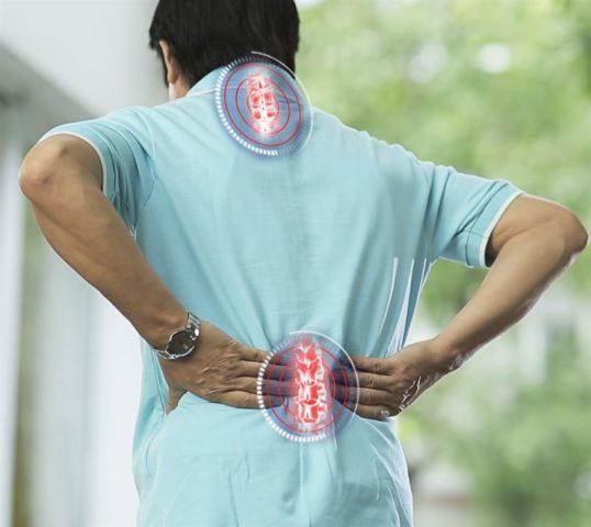 Vôi hóa cột sống là hiện tượng lắng đọng canxi gây đau nhức, tê mỏi cột sống
