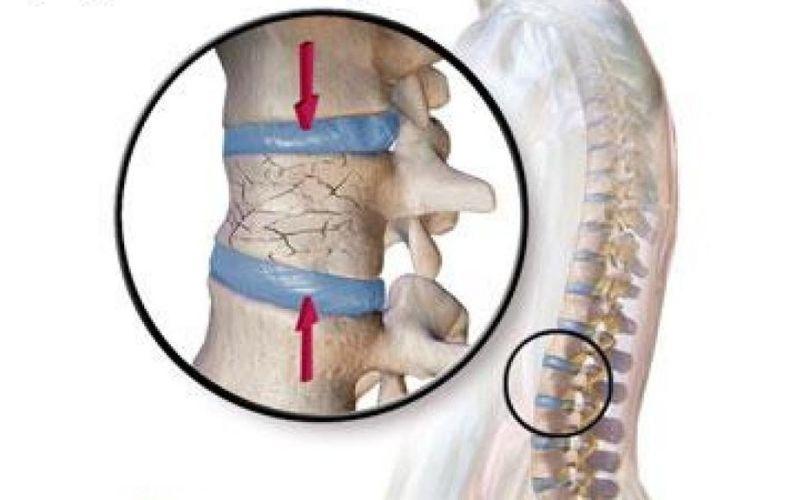 Cột sống bị chấn thương là một trong những nguyên nhân gia tăng nguy cơ mắc bệnh