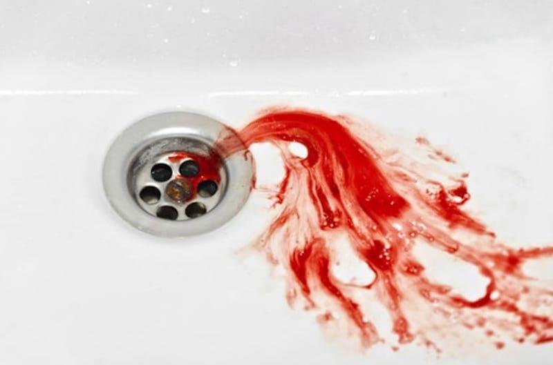 Nôn ra máu là một biểu hiện rõ ràng nhất của bệnh