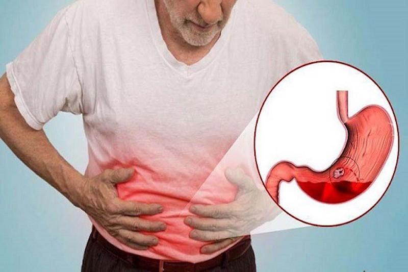 Xuất huyết tiêu hóa không được kiểm soát trong 24h đầu có thể gây tử vong cao