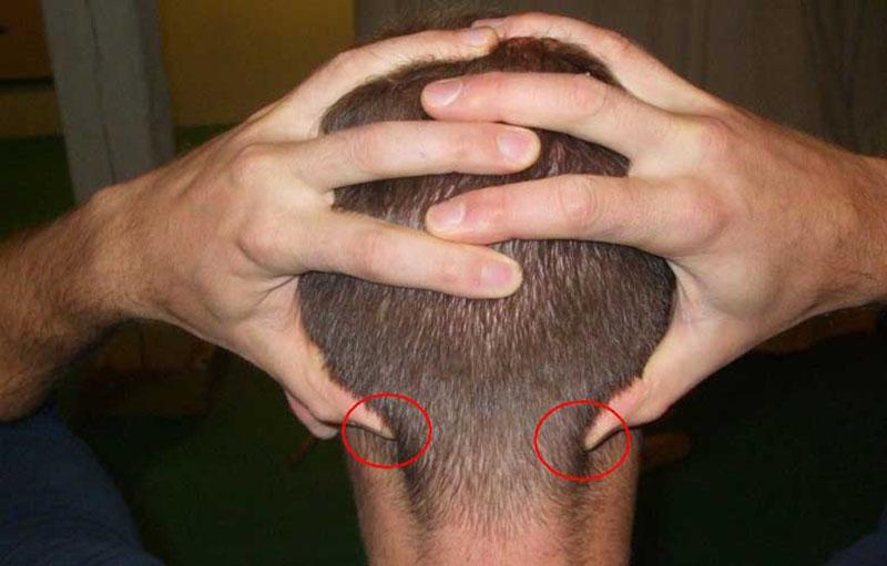 Huyệt phong trì có thể trị 8 chứng bệnh ở vùng đầu và cổ