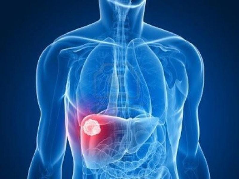 Dược liệu hỗ trợ điều trị ung thư gan