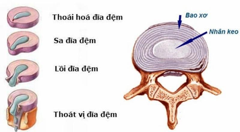 Lồi đĩa đệm L4 - L5 là một trong 4 giai đoạn bệnh thoát vị đĩa đệm