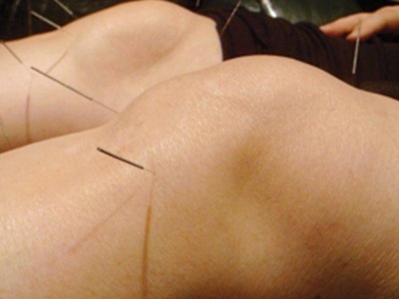 Châm cứu thoái hóa khớp gối giúp giảm đau, giảm sự co cứng cơ hiệu quả
