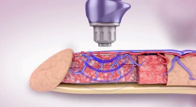 Phương pháp chữa xuất tinh sớm bằng sóng cao tần