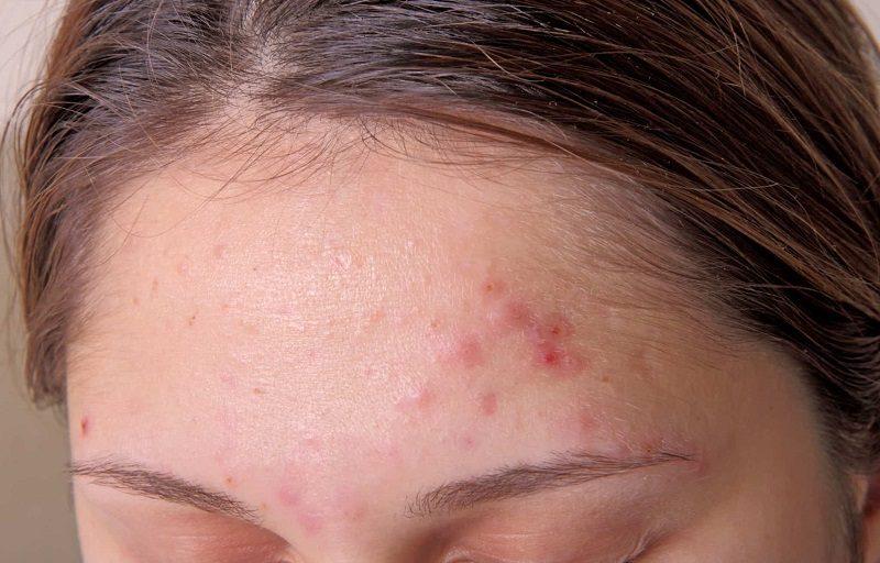 Vảy nến được đánh giá là một trong những nguyên nhân hàng đầu gây nên tình trạng da mặt bị khô và sần