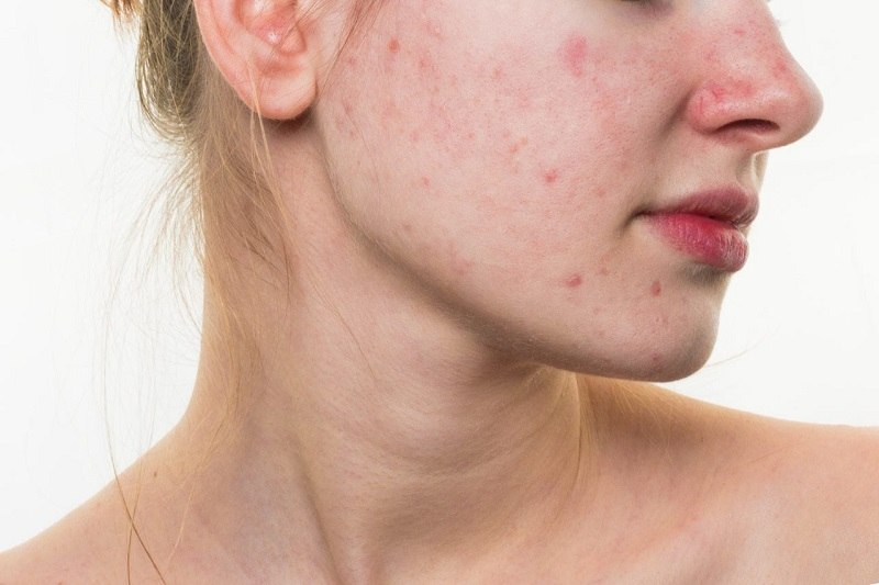 Da mặt bị ngứa và khô do dị ứng