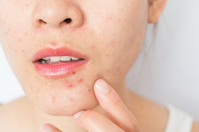 Những nguyên nhân khiến da mặt bị ngứa và khô