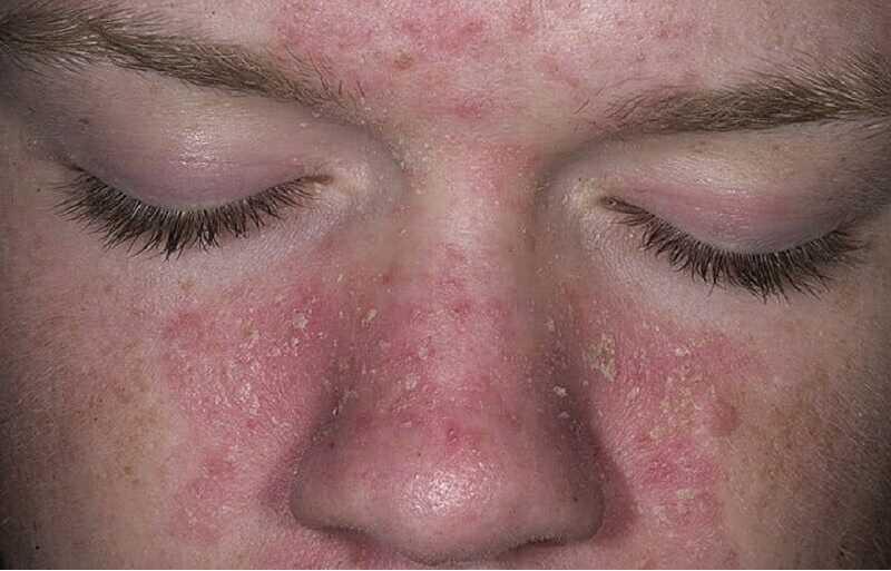 Da mặt bị ngứa và nổi sần làm mọi người mất tự tin