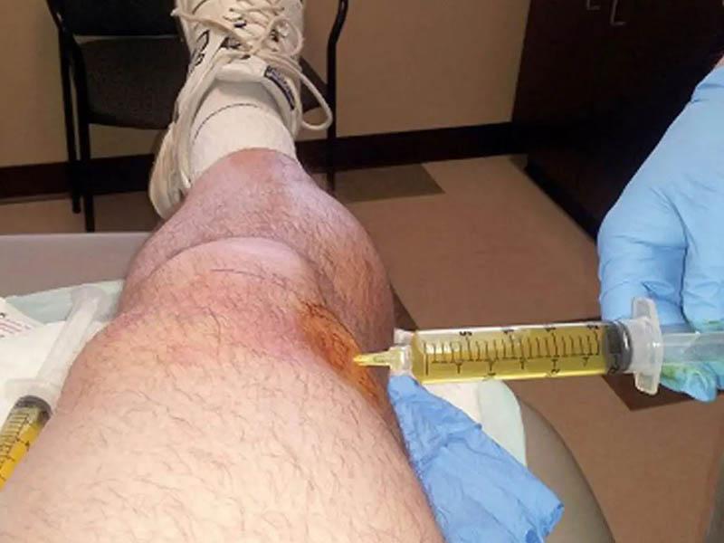 Điều trị thoái hóa khớp gối bằng chất nhờn là phương pháp tiêm axit hyaluronic vào khớp gối