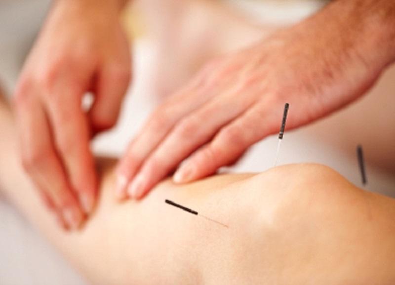 Điều trị thoái hóa khớp gối bằng đông y châm cứu thường có tác dụng thuyên giảm tại chỗ