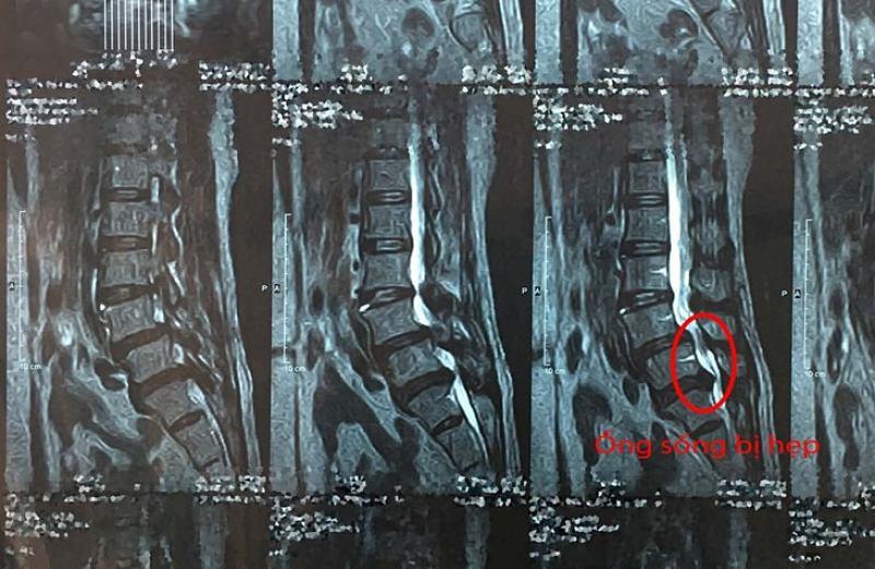 Hình ảnh MRI cho thấy ống sống bị hẹp do khối thoát vị