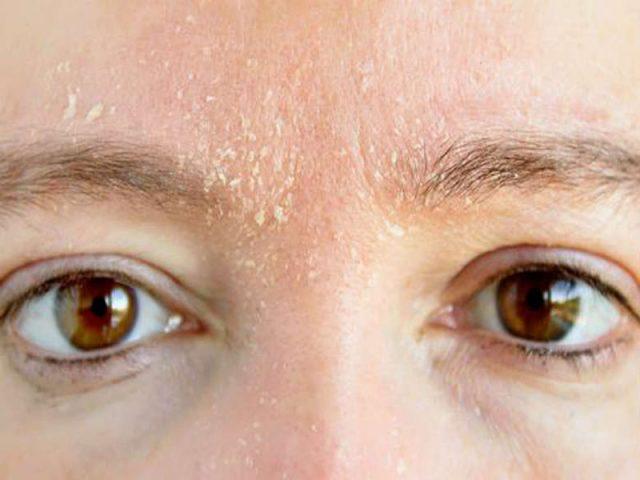 Viêm da tiết bã ở mặt có thể gây ngứa và bong tróc tại chân mày