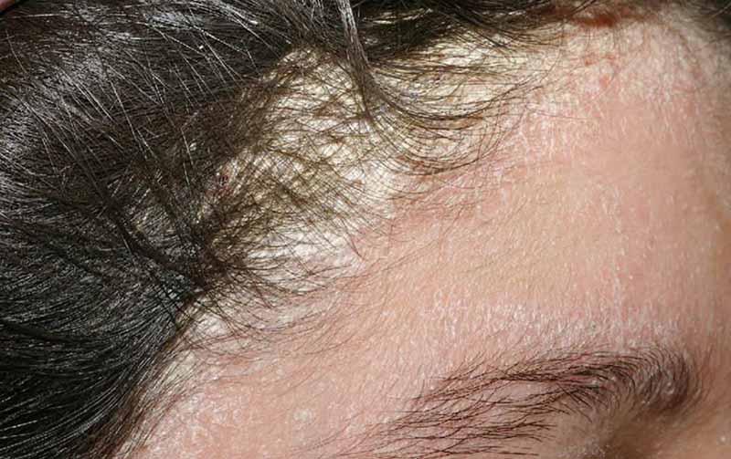 Vảy nến da đầu là một dạng rối loạn tăng sinh các tế bào sừng do yếu tố miễn dịch và di truyền