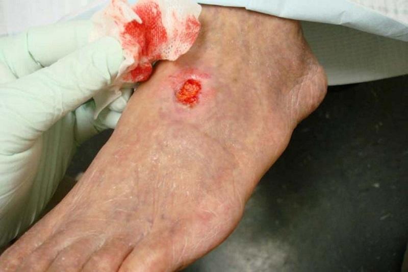 Ngứa loét da có thể là triệu chứng của viêm da mủ hoại thư