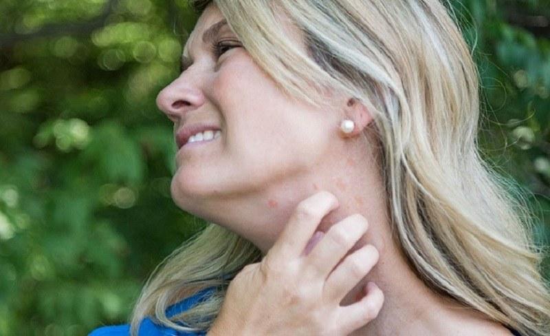 Viêm da cơ địa là tổn thương ngoài da phổ biến ở nhiều đối tượng.