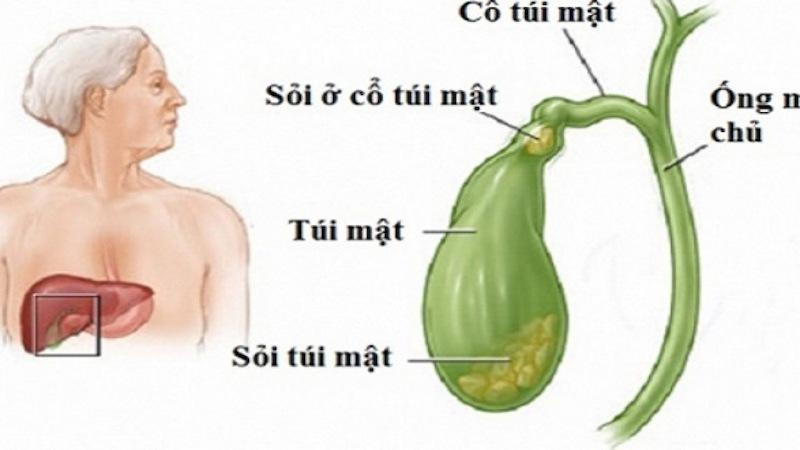 Sỏi đường mật là tình trạng kết sỏi trong mật gây đau và có thể dẫn đến biến chứng nguy hiểm