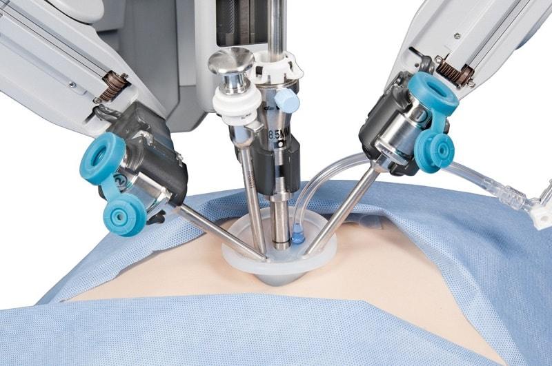 Ngày nay người ta thường phẫu thuật nội soi lấy sỏi ra bên ngoài