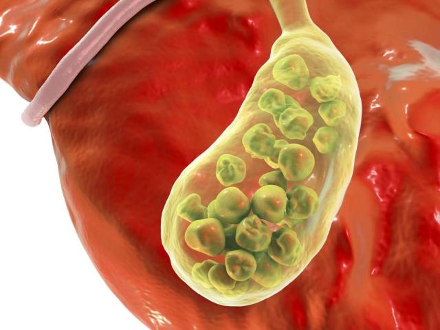 Bệnh sỏi túi mật được hình thành do sự mất cân bằng của các thành phần trong dịch mật