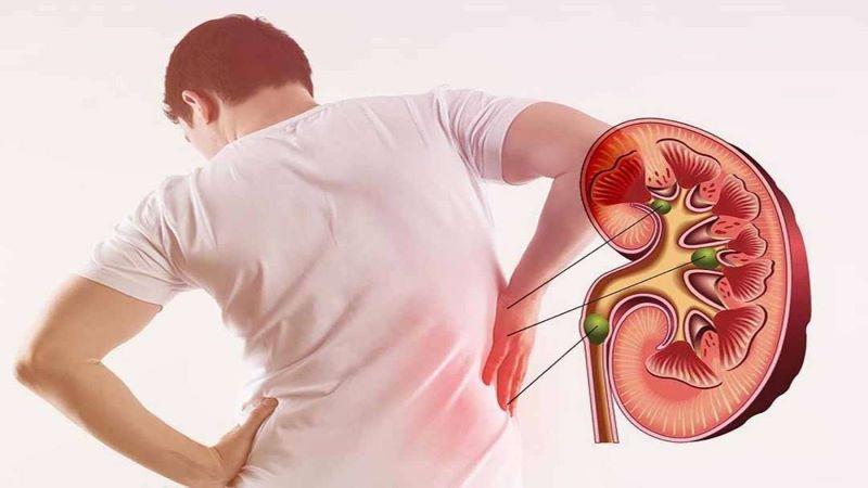 Đau bên mạn lưng là triệu chứng đặc trưng của căn bệnh này