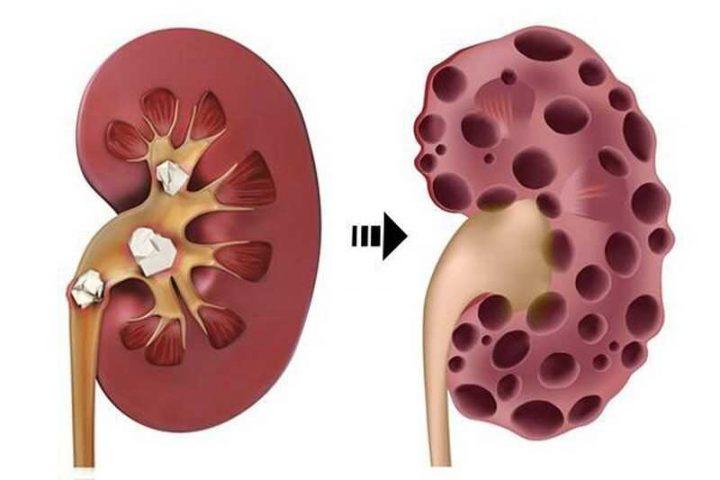Suy thận cấp độ 4 ảnh hưởng nghiêm trọng đến khả năng lọc máu, cân bằng lượng nước, chất khoáng trong cơ thể