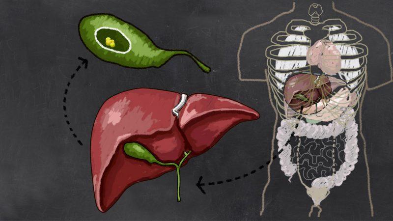 Bệnh sỏi mật biến chứng có thể gây tắc ống mật chủ