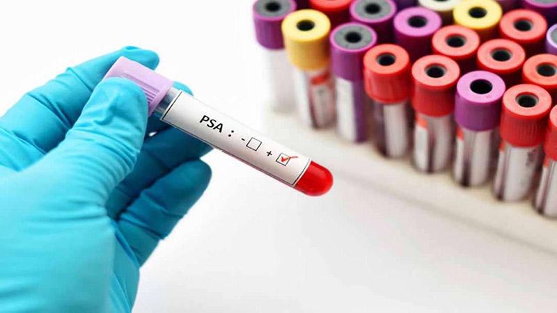 Xét nghiệm PSA để chẩn đoán bệnh
